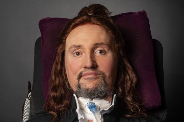 jason-becker-is-undergoing-treatment-for-bacterial-infection